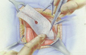 plasa-chirurgicala-hernie-inghinala