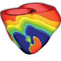 modelare computationala a unui model cardiac