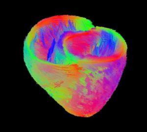 vizualizarea fibrei cardiace
