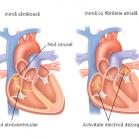fibrilatii atriale - sendo.info
